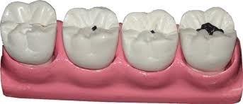 dentes-com-carie