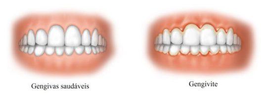 gengivite-melhor-creme-dental-para-gengivite